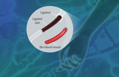 3D Printed Bio-Blood- Vessels