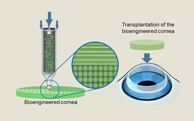 Researchers develop transparant artificial cornea using bio ink and 3D cell printer
