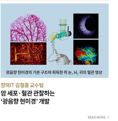 창의 IT 김철홍 교수팀 암 세포 혈관 관찰하는 '광음향 현미경' 개발 - READ MORE