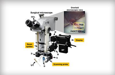 창의 김철홍 교수팀, 혈관수술 등 미세수술 적용 가능한 영상 시스템 기술 개발