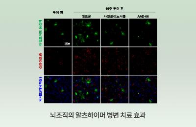 뇌조직의알츠하이머병변치료효과_