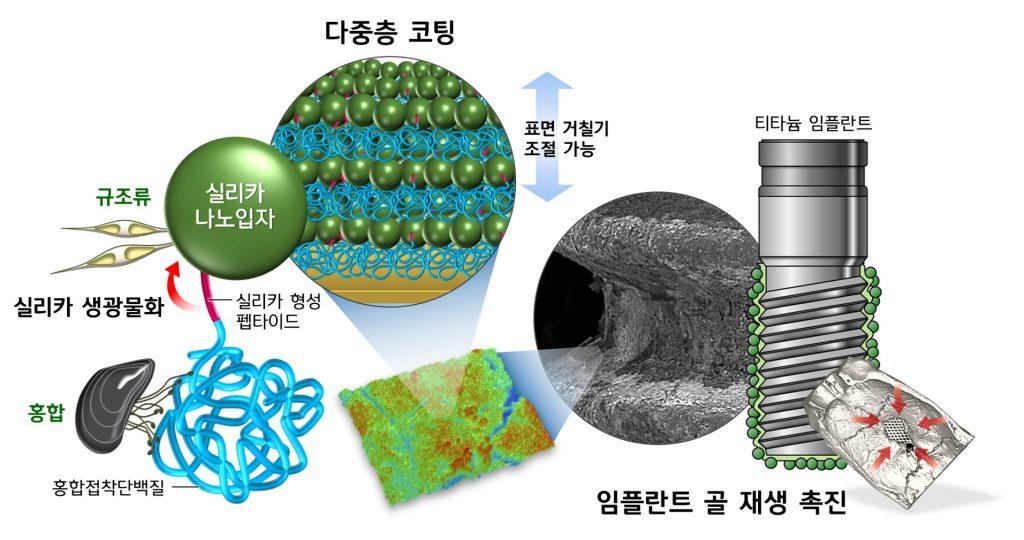 실리카 나노입자-규조류-실리카 형성 펩다이드-실리카 생광물화-홍합-홍합접착단백질-다중층 코팅-표면거칠기조절가능-티타늄 임플란트-임플란트 골 재생 촉진