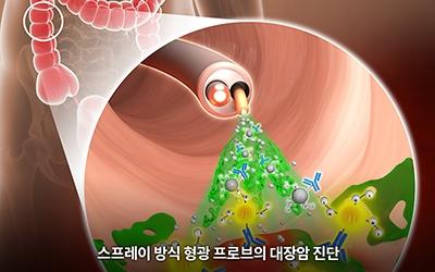 화학 김성지 교수팀, 단 5분 만에 빠르고 정확하게 초기 대장암 진단하는 스프레이 나왔다