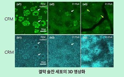 기계·융합생명 김기현 교수팀, '술잔세포영상법'으로 안구건조증 제대로 진단하다